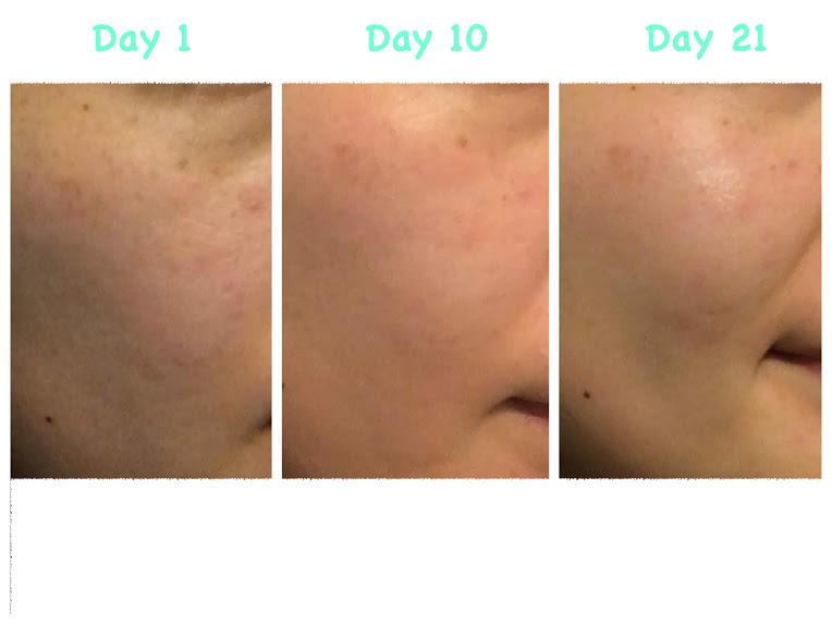 レチンAクリーム 肌の変化